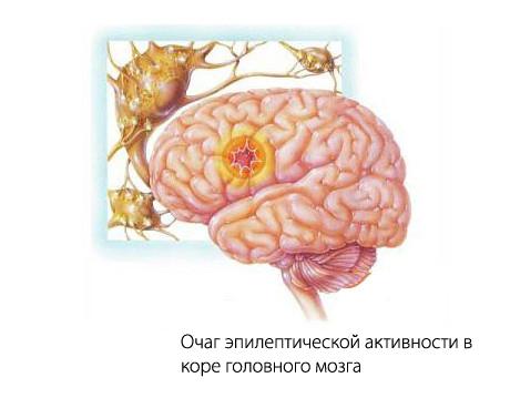 Эпилепсия лобная височная —симпотомы и лечение